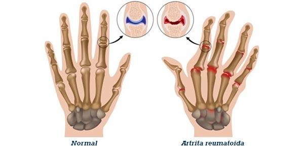artrita reumatoida)